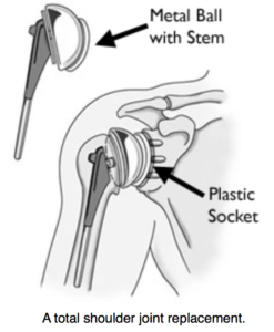 Shoulder Joint Replacement jonathan frank md los angeles orthopedic surgery