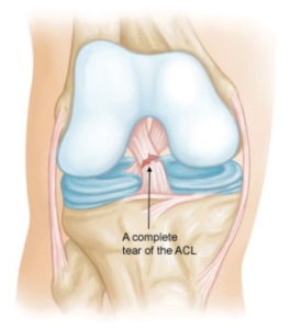 Anterior Cruciate Ligament (ACL) Injuries jonathan frank md