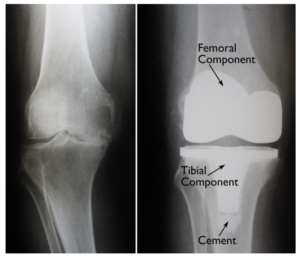 Total Knee Replacement jonathan frank md los angeles orthopedic