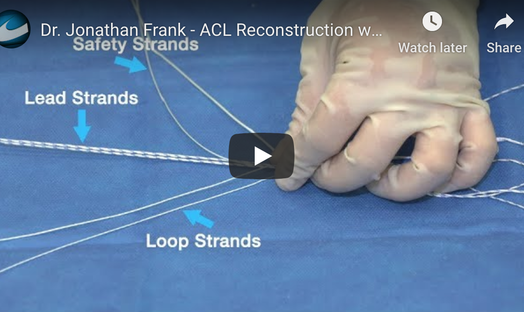 Dr. Jonathan Frank Performs ACL Reconstruction Using Graftmax™, Exoshape®, and Crossft®